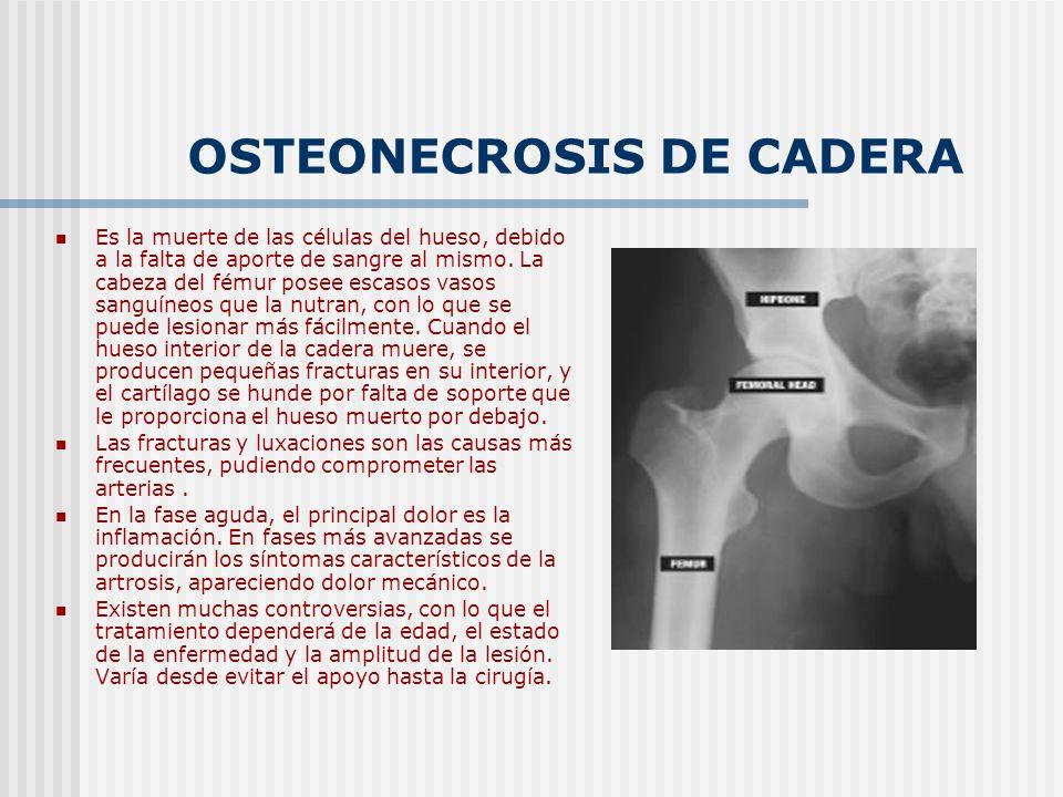 OSTEONECROSIS DE CADERA