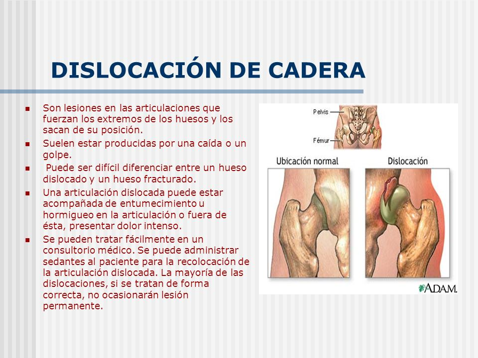DISLOCACIÓN DE CADERA Son lesiones en las articulaciones que fuerzan los extremos de los huesos y los sacan de su posición.