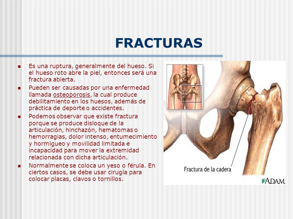 FRACTURAS Es una ruptura, generalmente del hueso. Si el hueso roto abre la piel, entonces será una fractura abierta.