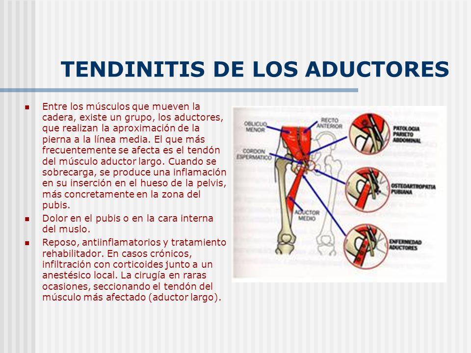 TENDINITIS DE LOS ADUCTORES