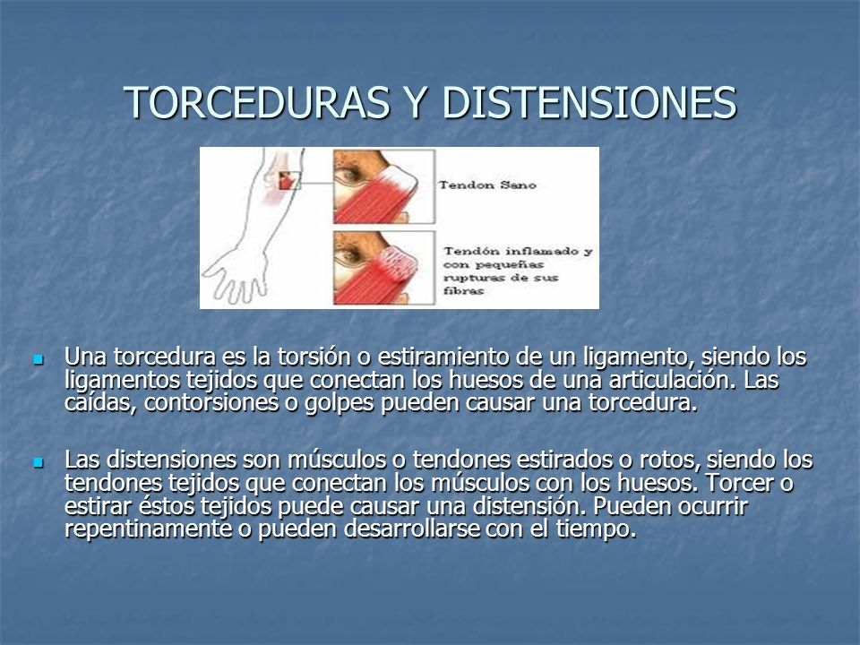 TORCEDURAS Y DISTENSIONES