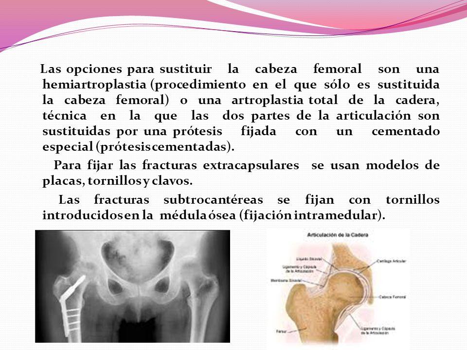 Las opciones para sustituir la cabeza femoral son una hemiartroplastia (procedimiento en el que sólo es sustituida la cabeza femoral) o una artroplastia total de la cadera, técnica en la que las dos partes de la articulación son sustituidas por una prótesis fijada con un cementado especial (prótesis cementadas).