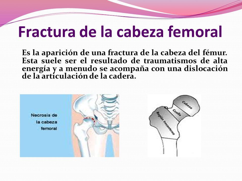 Fractura de la cabeza femoral