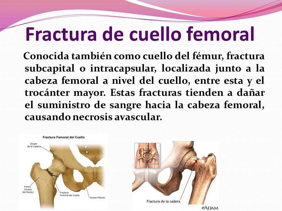 Fractura de cuello femoral