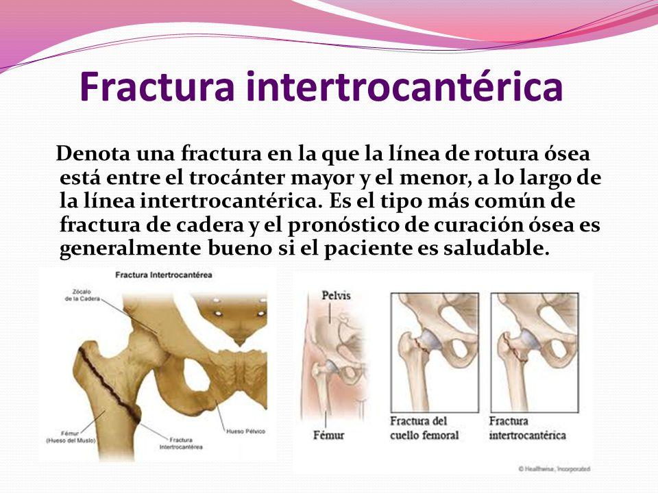Fractura intertrocantérica