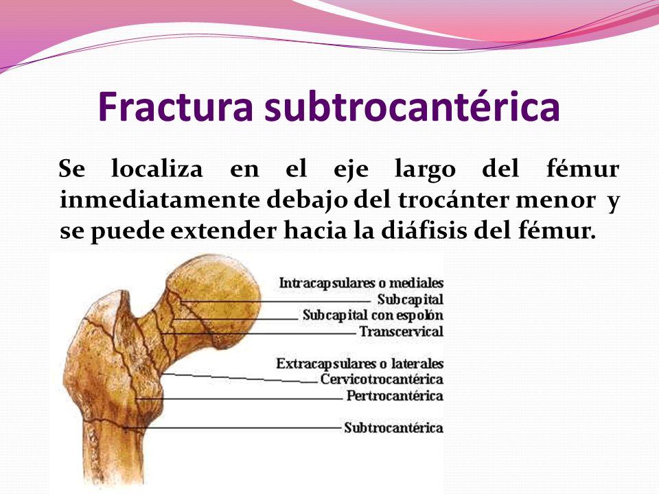 Fractura subtrocantérica