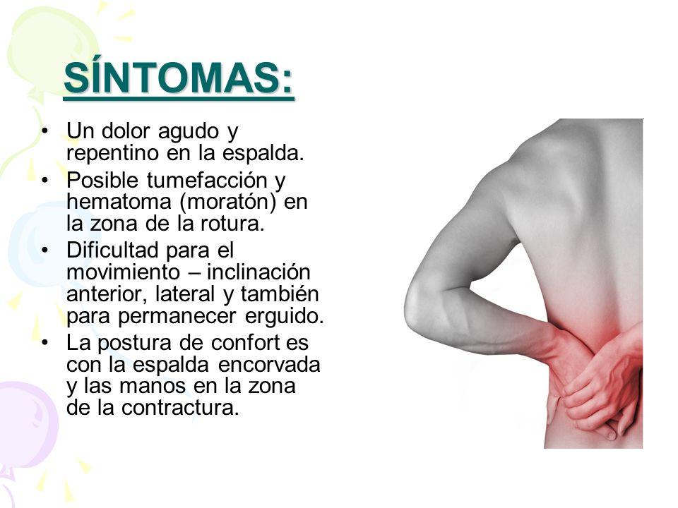 SÍNTOMAS: Un dolor agudo y repentino en la espalda.