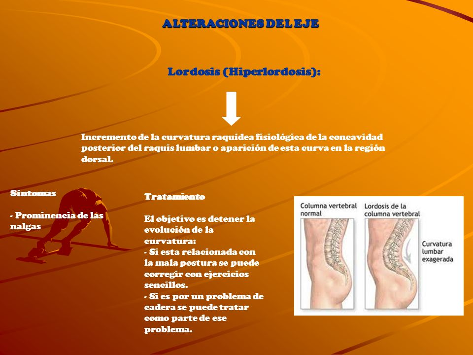 Lordosis (Hiperlordosis):