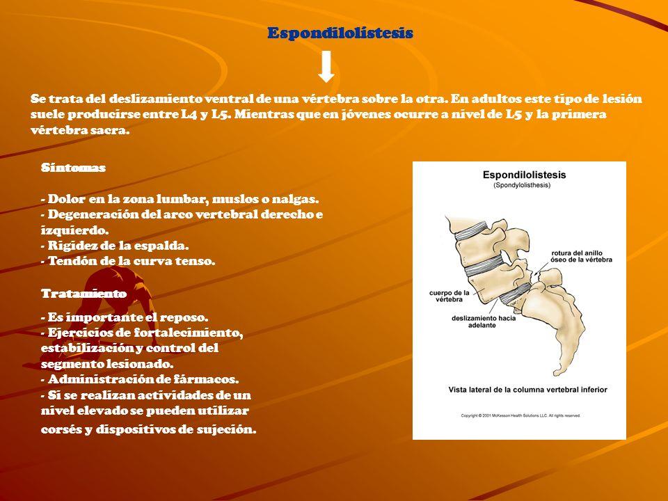 Espondilolístesis
