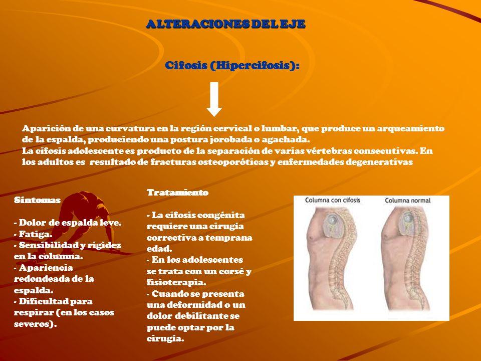 Cifosis (Hipercifosis):