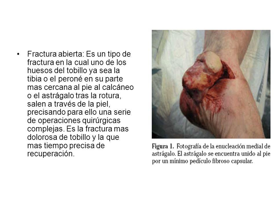 Fractura abierta: Es un tipo de fractura en la cual uno de los huesos del tobillo ya sea la tibia o el peroné en su parte mas cercana al pie al calcáneo o el astrágalo tras la rotura, salen a través de la piel, precisando para ello una serie de operaciones quirúrgicas complejas.