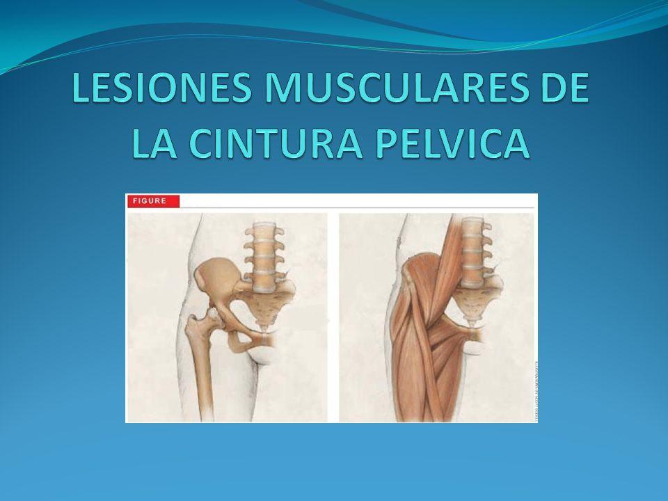 LESIONES MUSCULARES DE LA CINTURA PELVICA