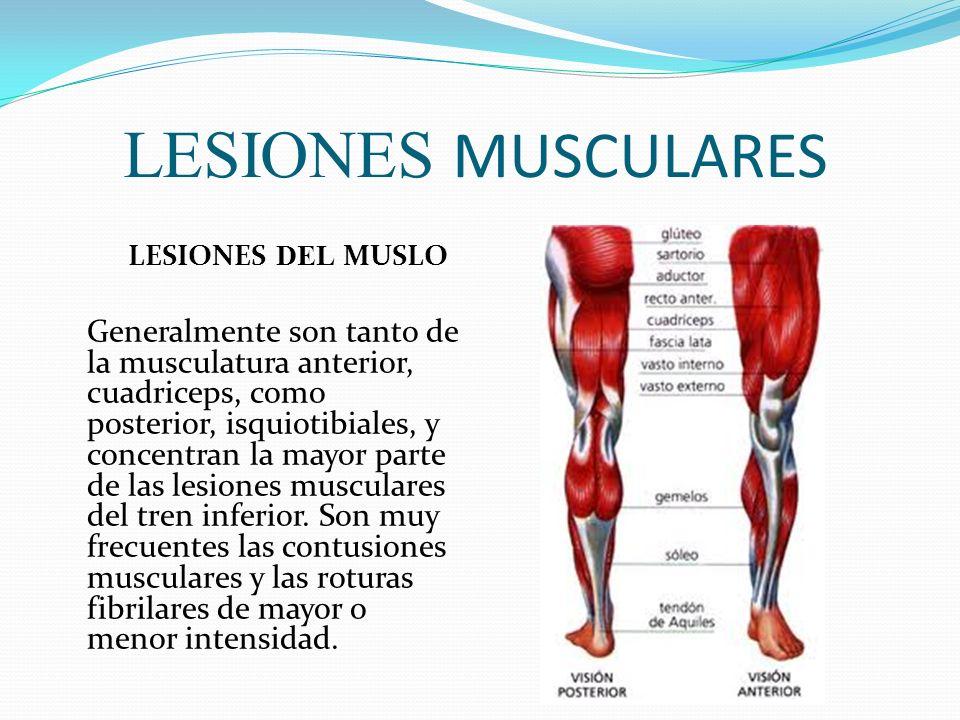 LESIONES MUSCULARESLESIONES DEL MUSLO.
