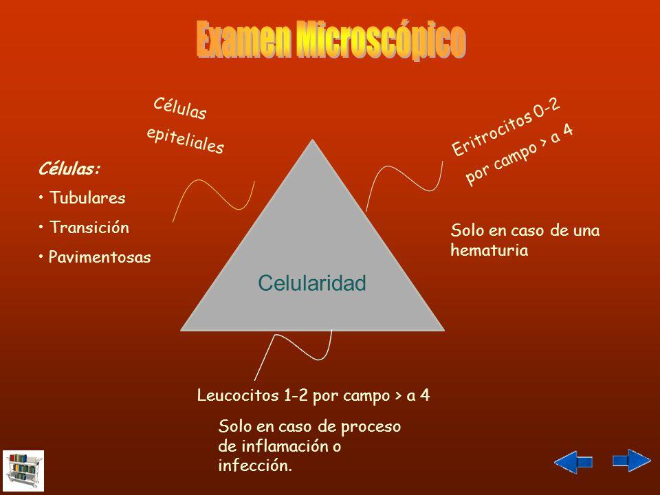 Examen Microscópico Celularidad Células Eritrocitos 0-2 epiteliales