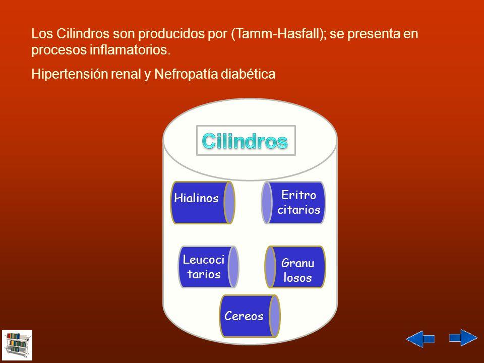 Los Cilindros son producidos por (Tamm-Hasfall); se presenta en procesos inflamatorios.