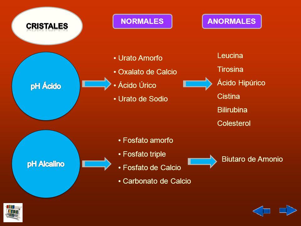 CRISTALES NORMALES. ANORMALES. Leucina. Tirosina. Ácido Hipúrico. Cistina. Bilirubina. Colesterol.