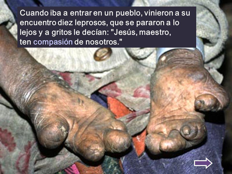 Cuando iba a entrar en un pueblo, vinieron a su encuentro diez leprosos, que se pararon a lo lejos y a gritos le decían: Jesús, maestro, ten compasión de nosotros.