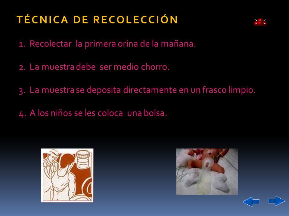 TÉCNICA DE RECOLECCIÓN