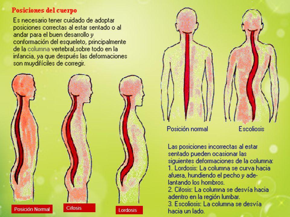 Posición Normal Cifosis Lordosis