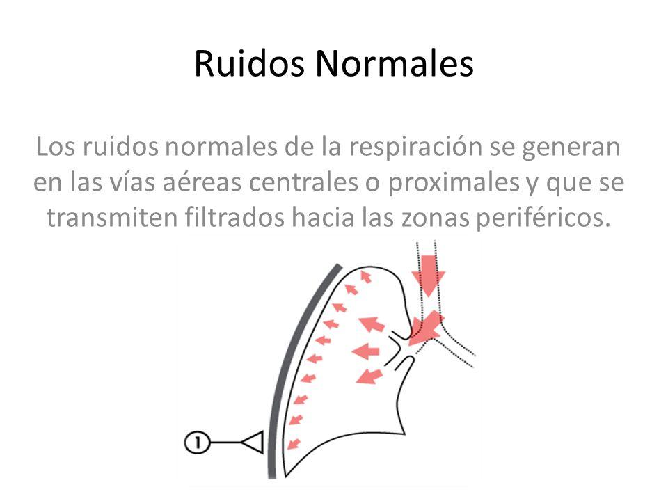 Ruidos Normales