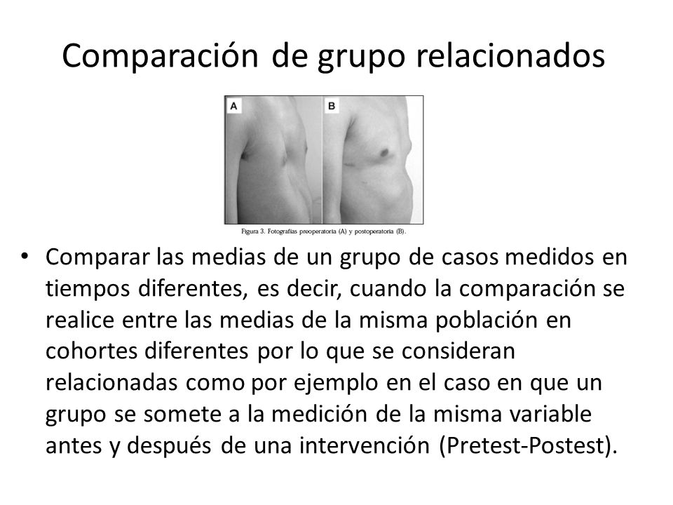 Comparación de grupo relacionados