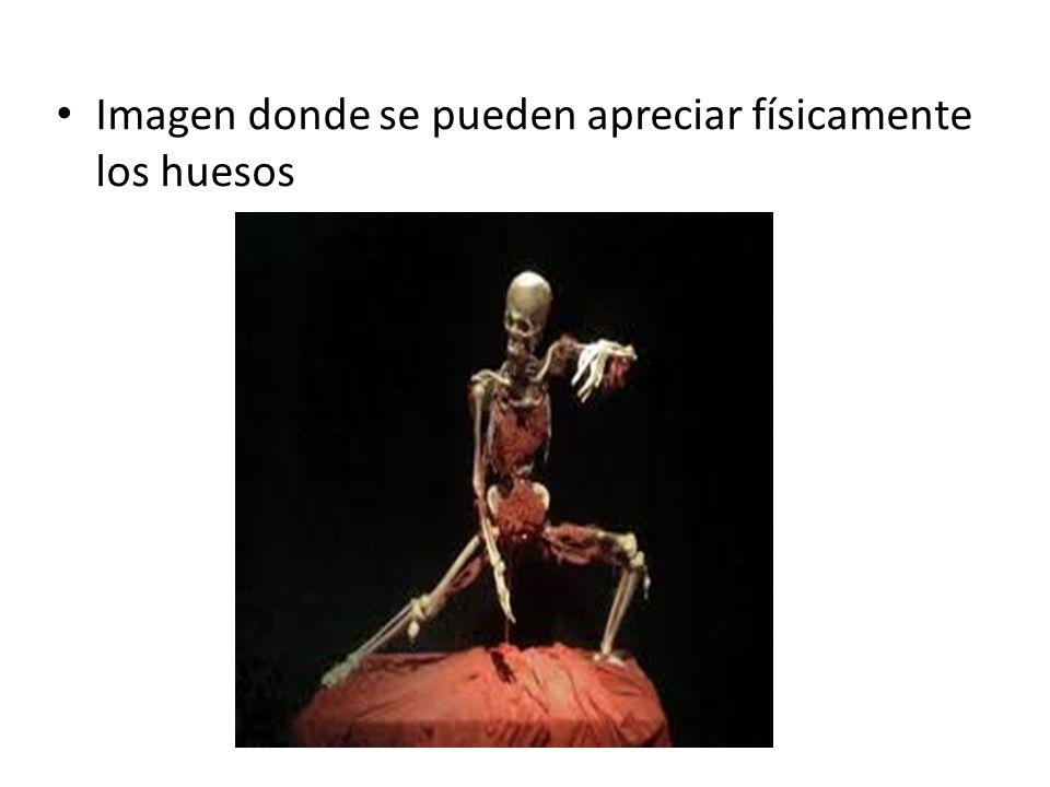 Imagen donde se pueden apreciar físicamente los huesos