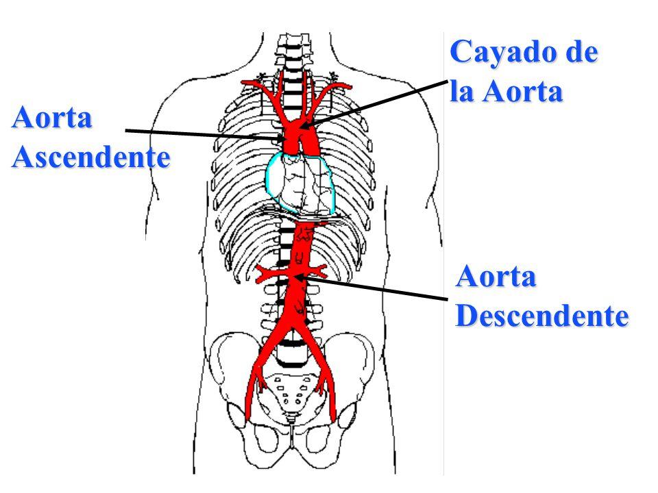 Cayado de la Aorta Aorta Ascendente Aorta Descendente