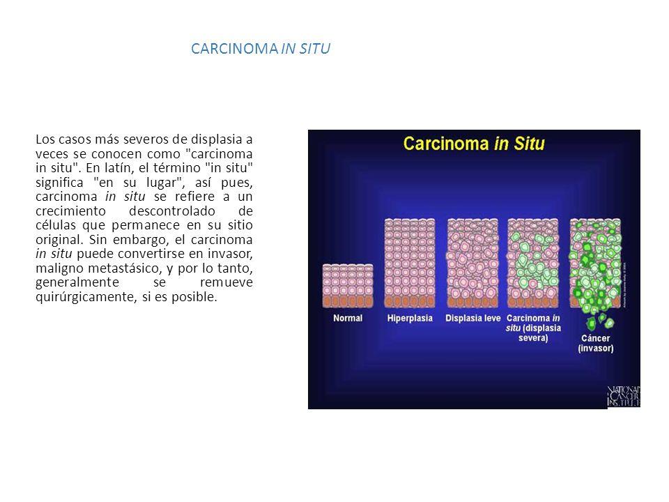 CARCINOMA IN SITU