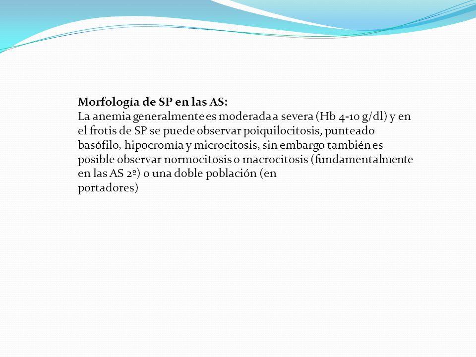 Morfología de SP en las AS: