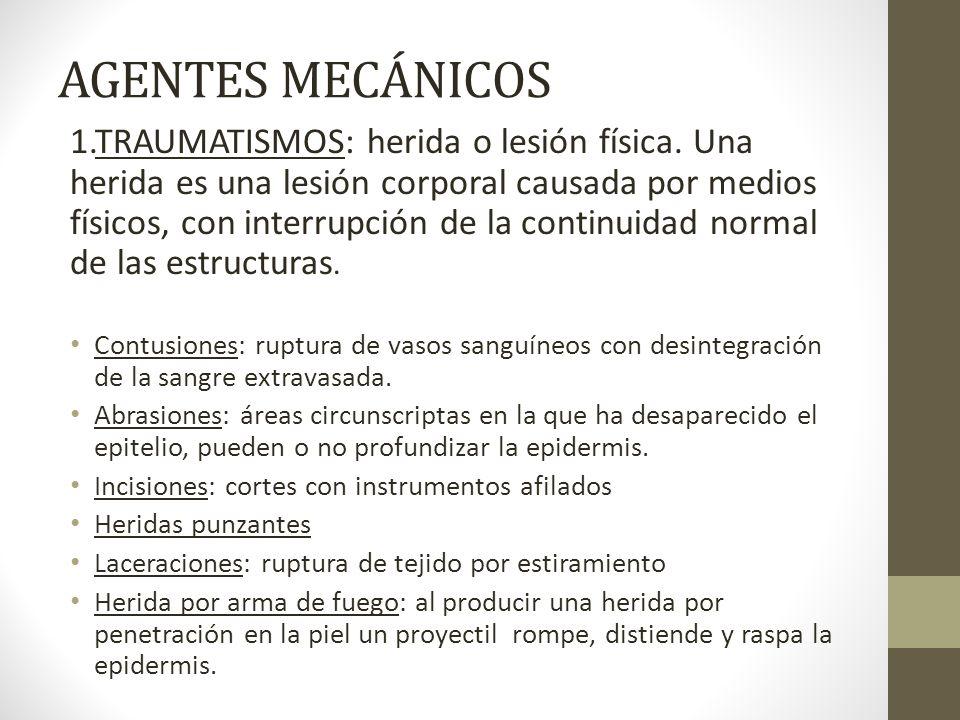 AGENTES MECÁNICOS