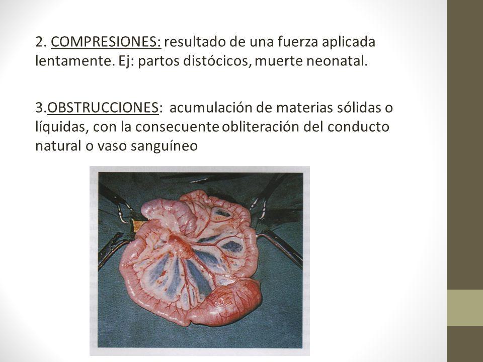 2. COMPRESIONES: resultado de una fuerza aplicada lentamente