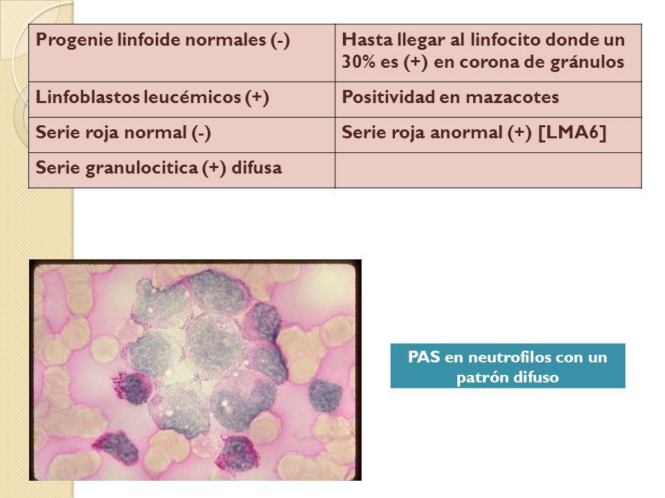 PAS en neutrofilos con un patrón difuso