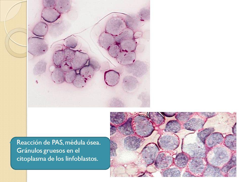 Reacción de PAS, médula ósea