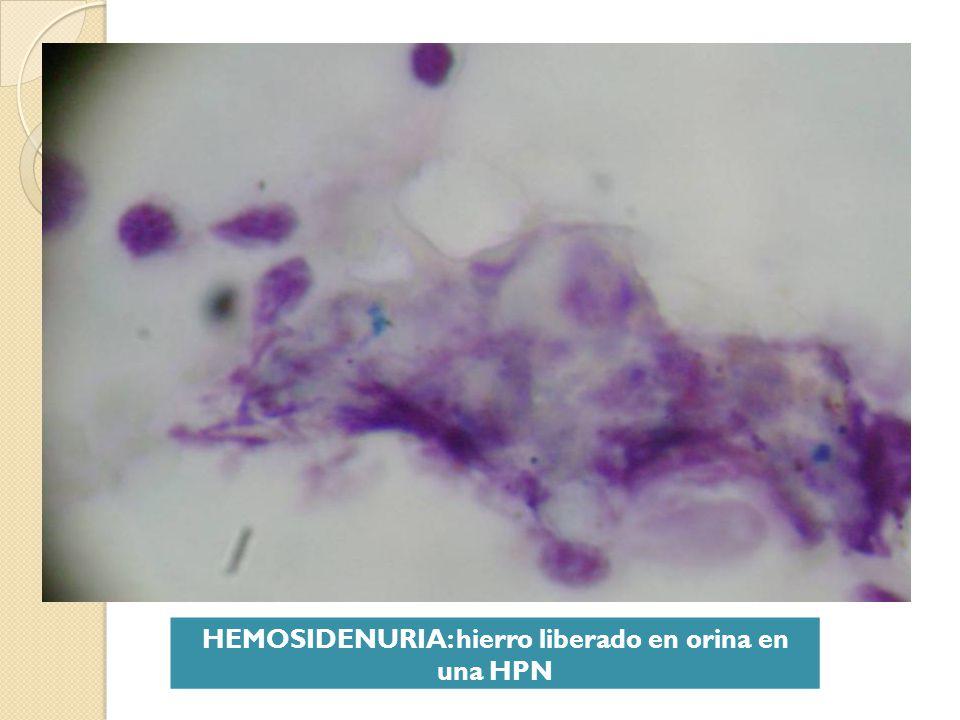 HEMOSIDENURIA: hierro liberado en orina en una HPN