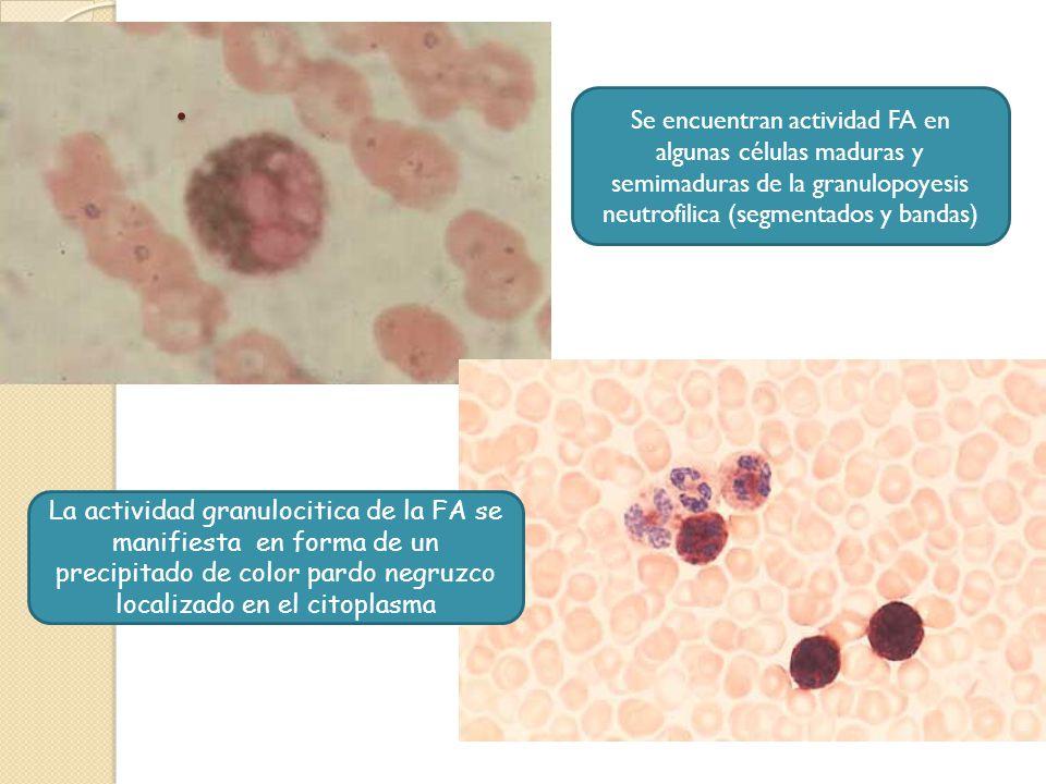. Se encuentran actividad FA en algunas células maduras y semimaduras de la granulopoyesis neutrofilica (segmentados y bandas)