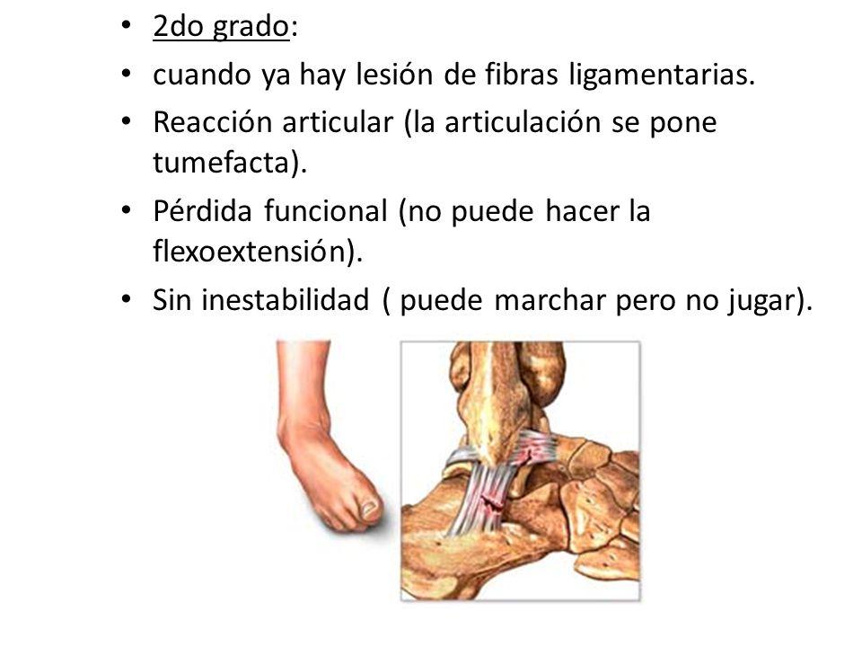 2do grado: cuando ya hay lesión de fibras ligamentarias. Reacción articular (la articulación se pone tumefacta).