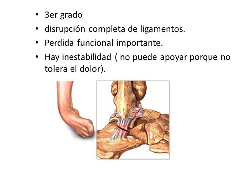 3er grado disrupción completa de ligamentos. Perdida funcional importante.