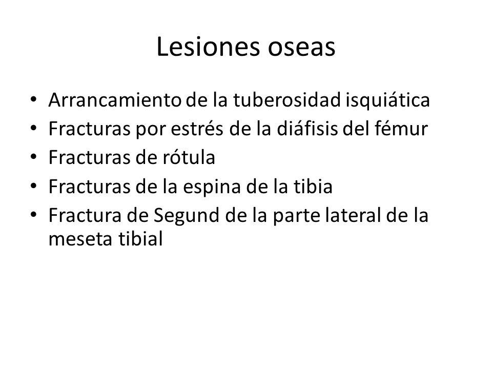 Lesiones oseas Arrancamiento de la tuberosidad isquiática