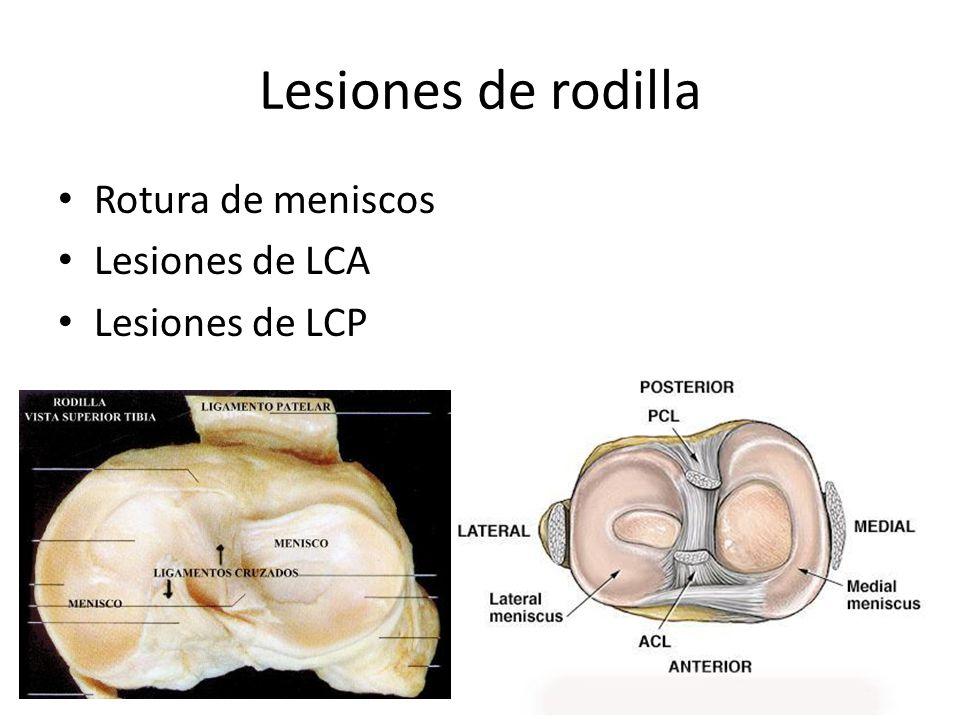 Lesiones de rodilla Rotura de meniscos Lesiones de LCA Lesiones de LCP