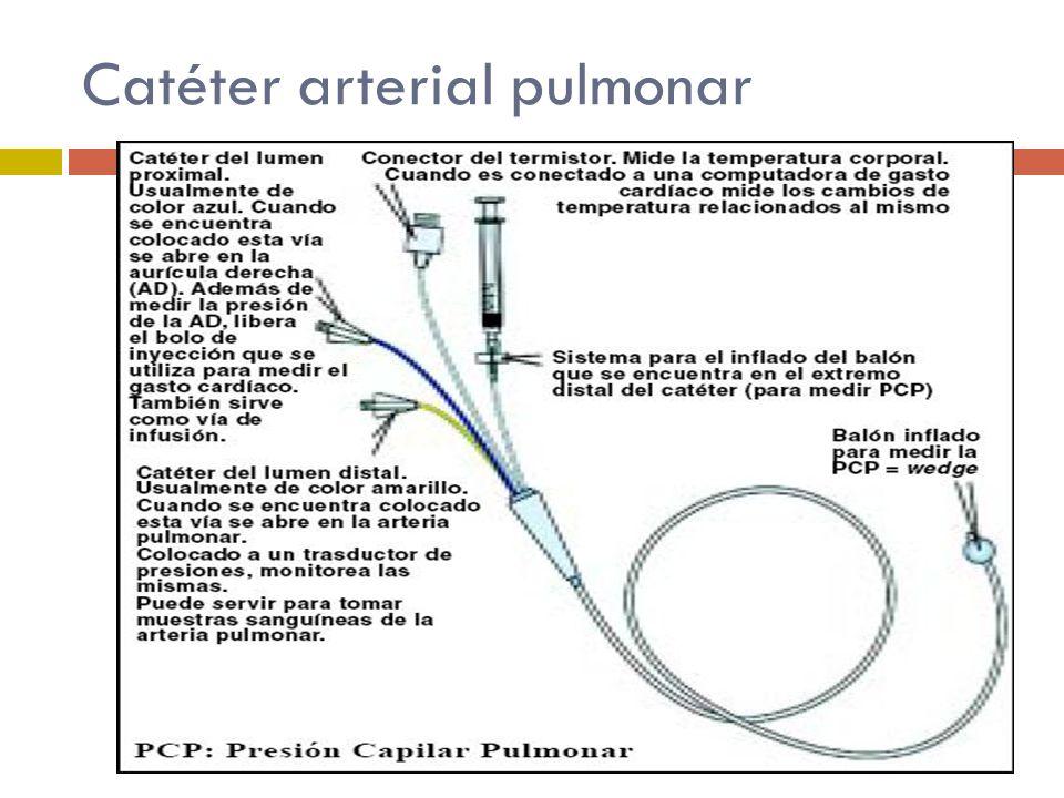 Catéter arterial pulmonar
