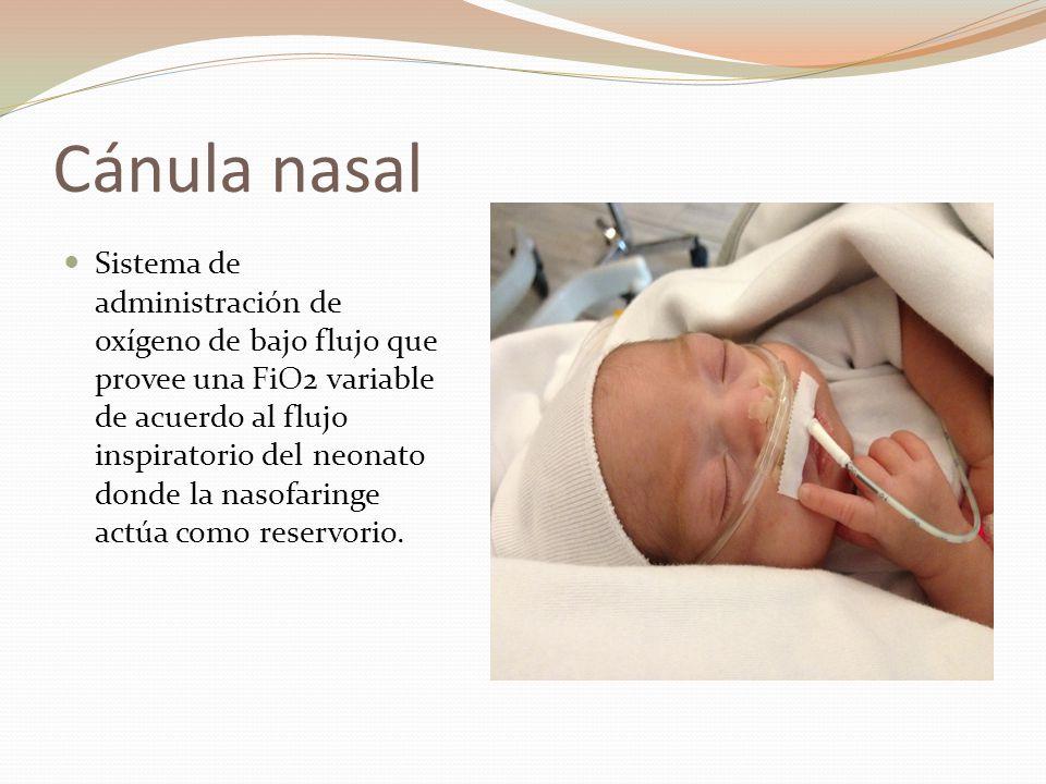 Cánula nasal