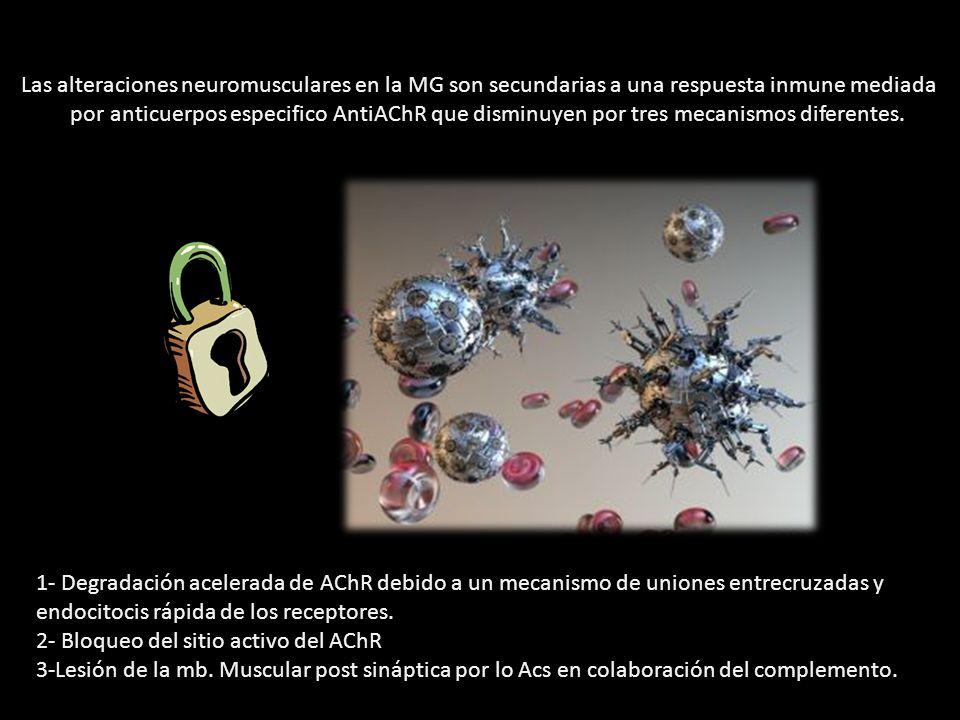 Las alteraciones neuromusculares en la MG son secundarias a una respuesta inmune mediada