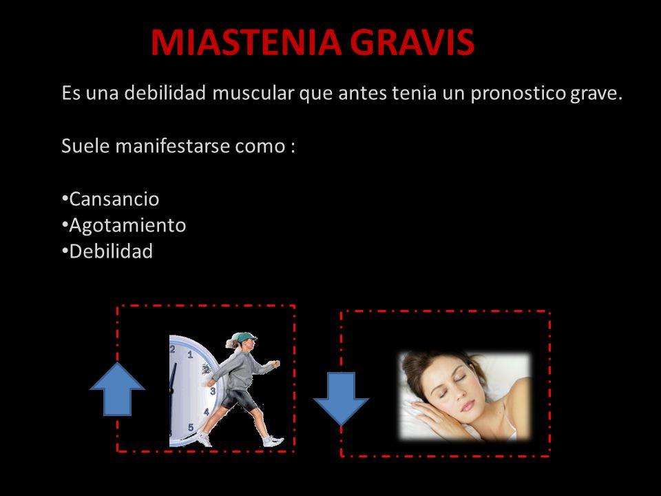 MIASTENIA GRAVIS Es una debilidad muscular que antes tenia un pronostico grave. Suele manifestarse como :
