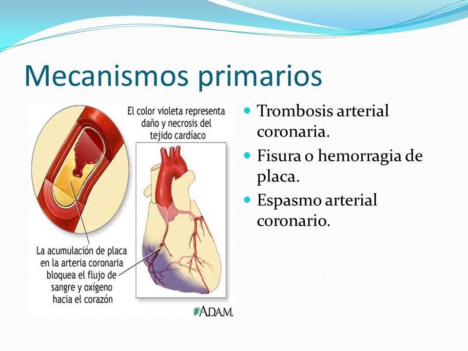 Mecanismos primarios Trombosis arterial coronaria.