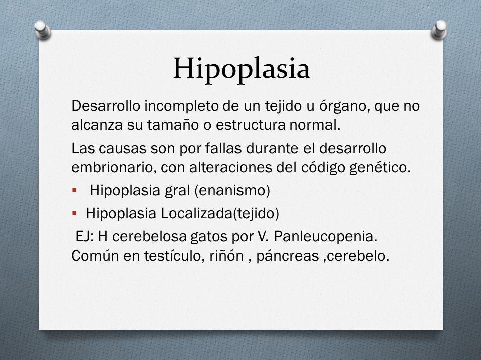 Hipoplasia Desarrollo incompleto de un tejido u órgano, que no alcanza su tamaño o estructura normal.