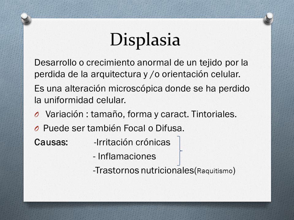 Displasia Desarrollo o crecimiento anormal de un tejido por la perdida de la arquitectura y /o orientación celular.