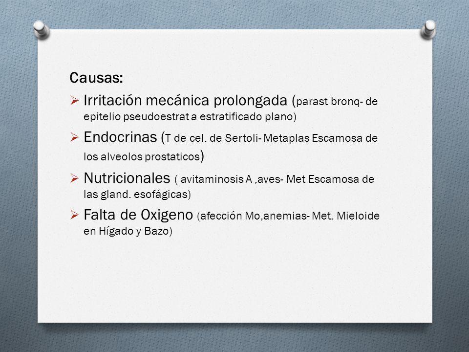 Causas: Irritación mecánica prolongada (parast bronq- de epitelio pseudoestrat a estratificado plano)