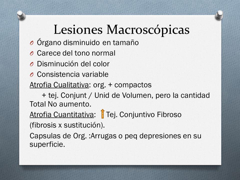 Lesiones Macroscópicas