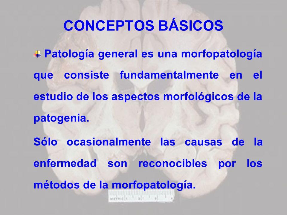 CONCEPTOS BÁSICOS Patología general es una morfopatología que consiste fundamentalmente en el estudio de los aspectos morfológicos de la patogenia.