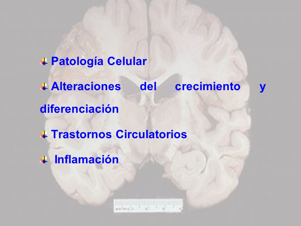 Patología Celular Alteraciones del crecimiento y diferenciación.